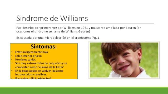 El Síndrome Williams Núria Prats García Su Blog Personal